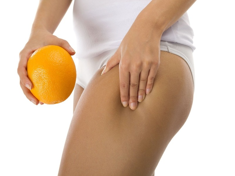Mesotherapy For Cellulite